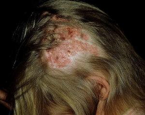 mikrosporia-u-человека