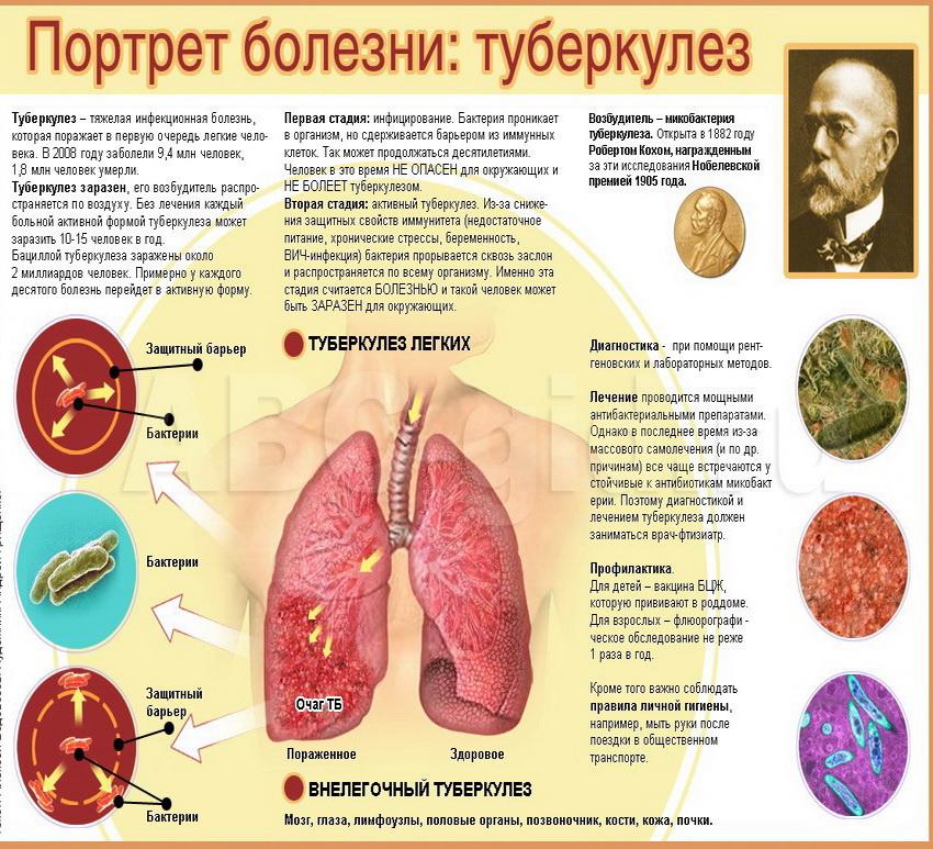 Заболеть туберкулезом при оральном сексе