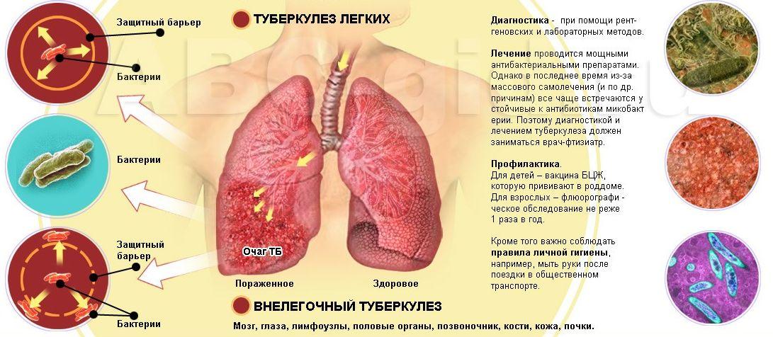 Симптомы три смегном налете на головке пениса